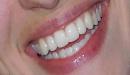 كيف نحصل على أسنان بيضاء ؟